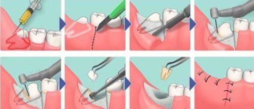 При нахождении зуба в костной структуре, его рассверливают и удаляют по частям