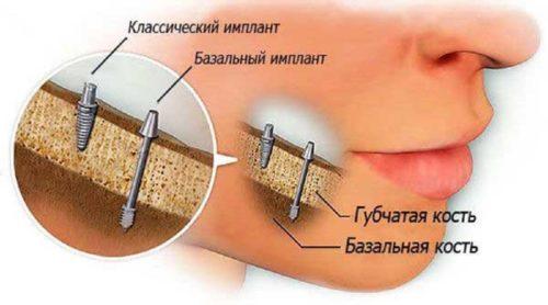 Базальный имплант устанавливается в более глубокий слой кости