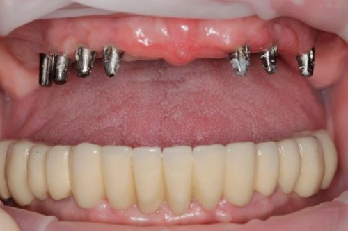 6 мини имплантов достаточно для полного протеза верхней челюсти