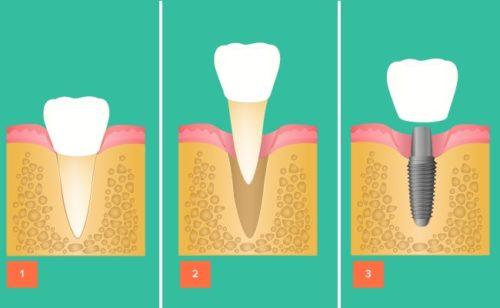 Этапы установки несъемного зубного протеза