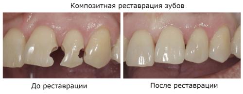 Прямая реставрация фронтальных зубов композитами