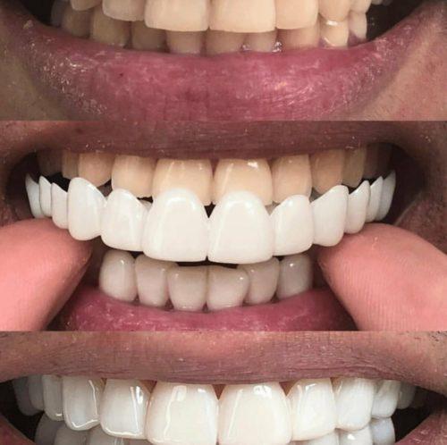 Временные виниры закрывают зубы на время изготовления постоянных накладок