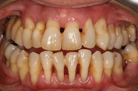 При запущенном пародонтите оголяются корни зубов, десны опускаются