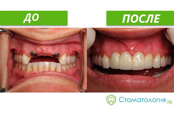 Имплантация передних зубов до и после