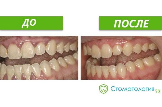 Лечение гингивита фото до и после
