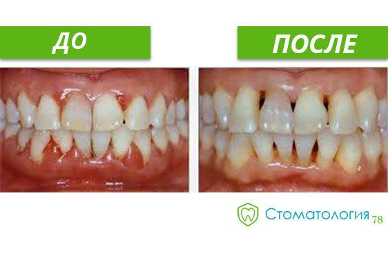 лечение пародонтита фото до и после