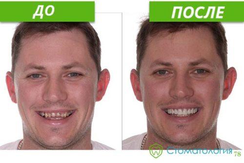Моделирование улыбки до и после
