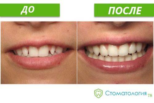 протезирование улыбки до и после