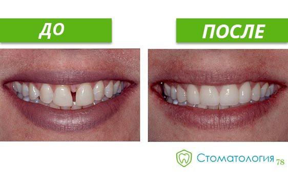 реставрация зубов до и после