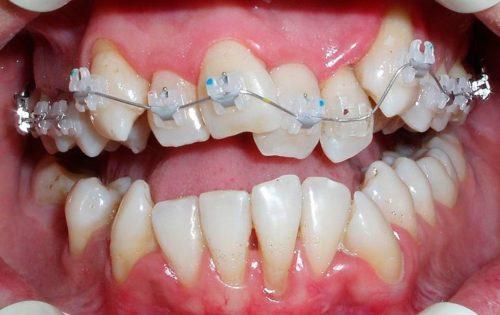 Одна из причин болезненности зубов давление дуги на зубной ряд