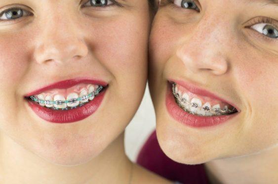 Брекет-системы устанавливаются на абсолютно здоровые зубы, прошедшие тщательную подготовку