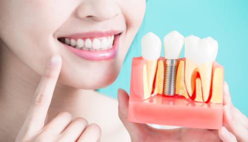 Имплантация зубов в Стоматологии78