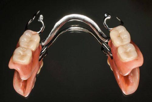 Частичный бюгельный протез без опоры на импланты