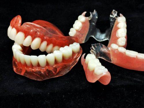Лучше протезы, или импланты зубов?