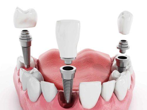 Импланты зубов устанавливаются в костную ткань