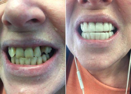 Виниры могут скорректировать незначительную кривизну зубов