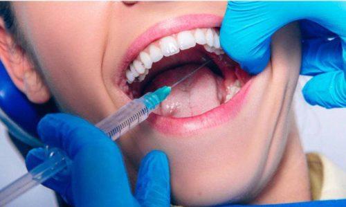Инфильтрационная анестезия при лечении зубов