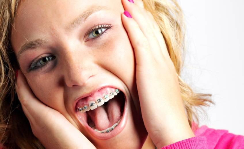 Боль от брекетов может быть давящей, неострой, резкой