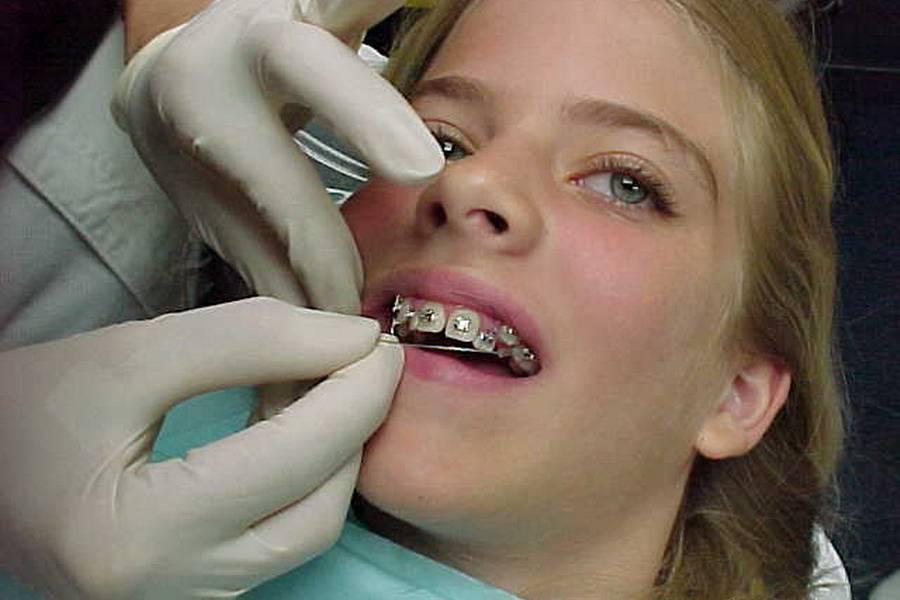 Если зубы под брекетами продолжают болеть, возможно нужна регулировка системы