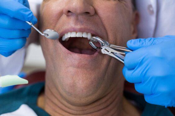 Экстракция, или удаление верхнего зуба